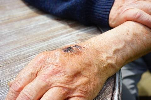 """עו""""ד תאונות עבודה במקרה של פגיעה בגוף"""