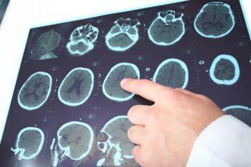 אפילפסיה בצבא והקשר בין המחלה לשירות הצבאי